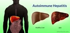 Πώς Γίνεται η Πρόληψη για τα Αυτοάνοσα και η Διαχείρισή τους με Βιολογικές Θεραπείες